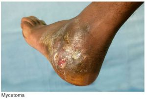 A photo of a foot with Mycetoma