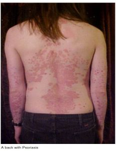 Photo of a back with Psoriasis