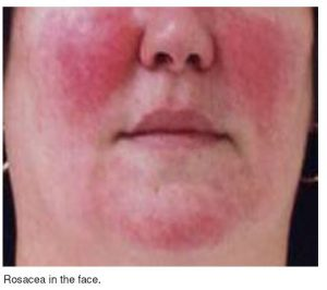 A close up poto of a face with Rosacea
