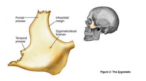 Medical illustration of the Zygomatic Arch