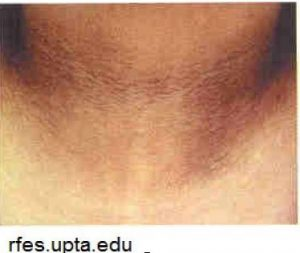 A photo of Acanthosis nigricans, which is a brown to black, poorly defined, velvety hyperpigmentation of the skin.