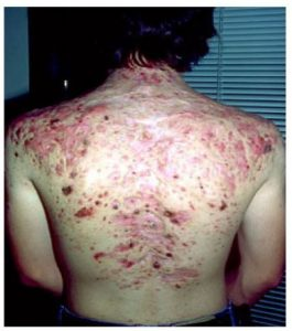 A photo of a mans back showing scarring from acne miliaris necrotica
