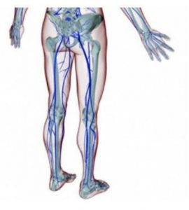 A 3D rendering of the sciatic nerve going down the leg