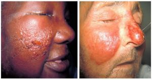 Two close up photos showing faces with Erysipelas and cellulitis