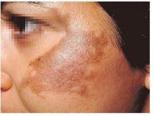 A close up photo showing Chloasma (melasma)