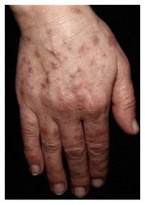 A photograph of hand with cutaneous manifestations of systemic lupus