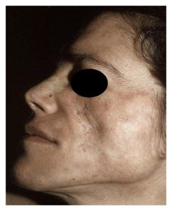 A photo of a face showing Cutaneous Manifestations of Systemic Lupus Erythematosus