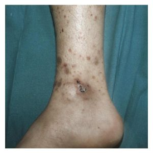A photo of ankle sores caused by Cutaneous Manifestations of Systemic Lupus Erythematosus