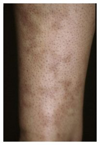 A photo of a shin rash caused by Cutaneous Manifestations of Systemic Lupus Erythematosus