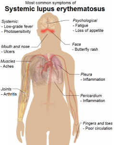 A medical illustration of the symptoms of systemic lupus