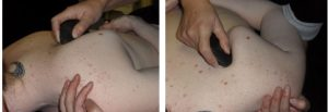 A photo showing the massage therapist using the stones to massage beneath the scapula
